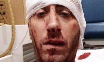Ušutkivanje metalnim palicama: Brutalno pretučen novinar BH TV Vladimir Kovačević